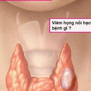viem-hong-hat-noi-hach-o-co